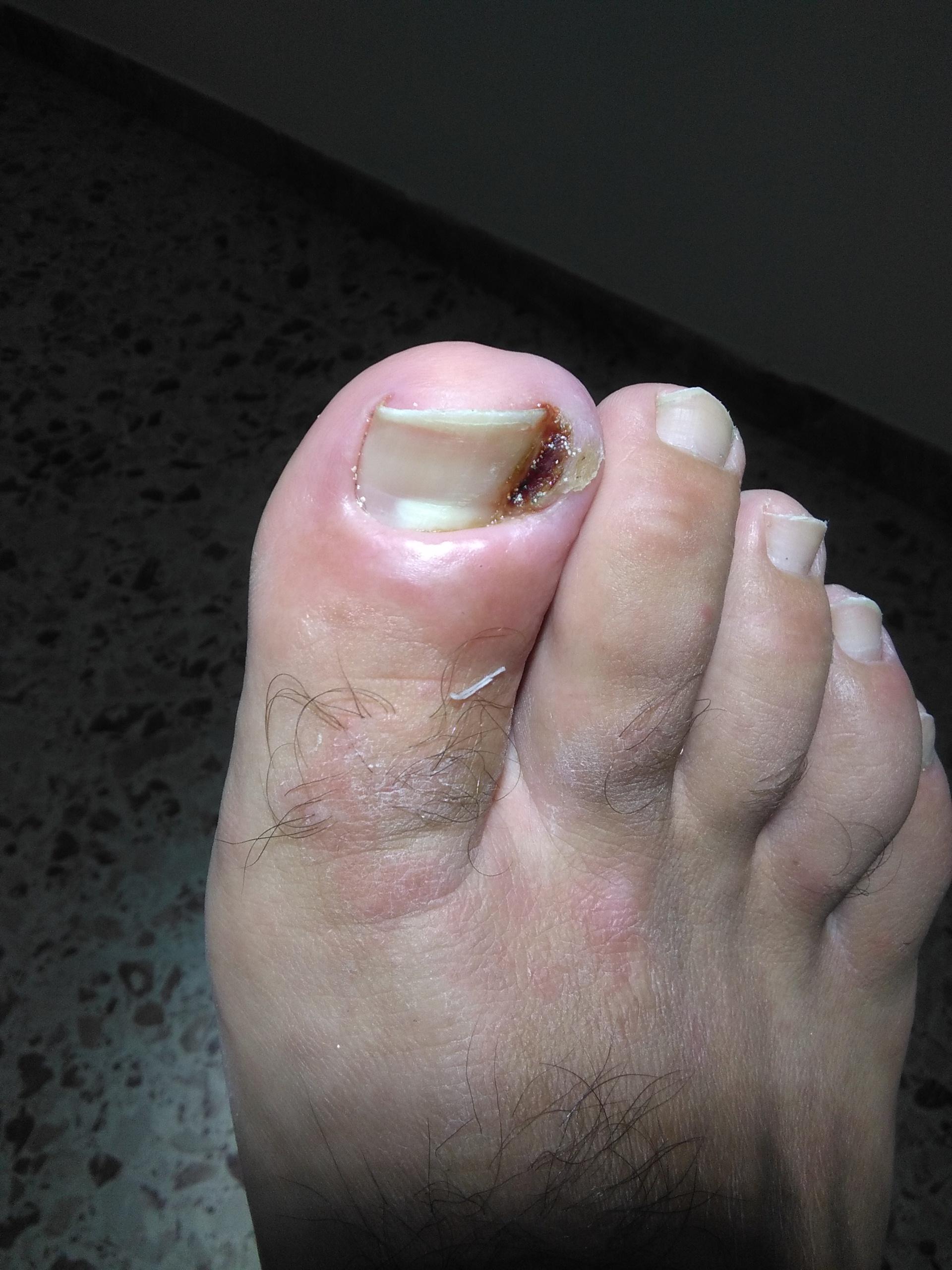 Come il fungo su occhiate di unghie di gamba